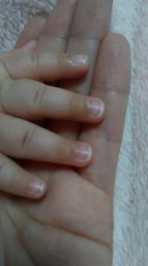 爪切りberore